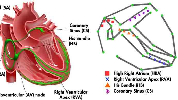 Entwicklung eines elektrophysiologischen Herzmodells für Regelkreistests von Herzschrittmachern in Echtzeit an der University of Pennsylvania