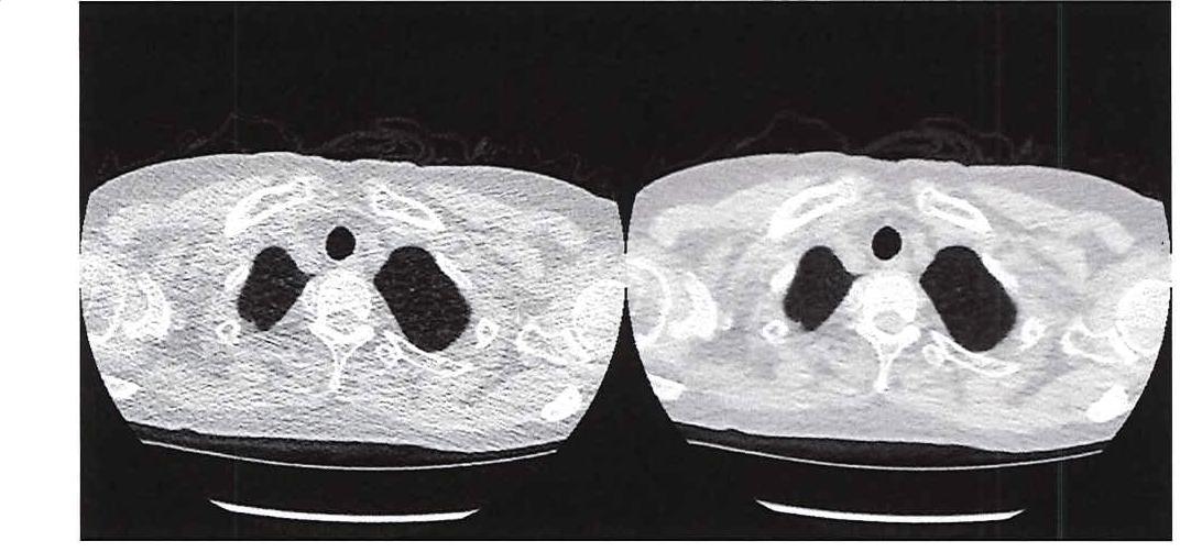 Abbildung 1: Vergleich der Bildqualität eines Ultraniedrigdosis-CTs (links) mit einem herkömmlichen CT (rechts).