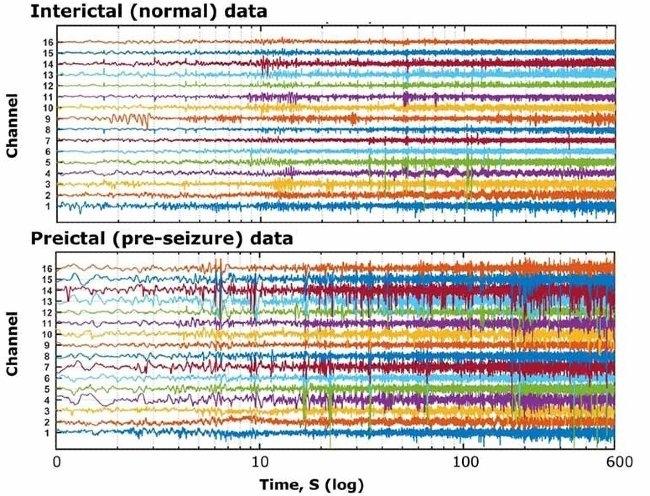 Abbildung 1: Von Kaggle zur Verfügung gestellte intrakranielle EEG-Daten.