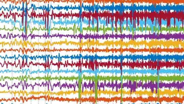 Vorhersage von epileptischen Anfällen anhand von EEG-Daten mittels Machine Learning