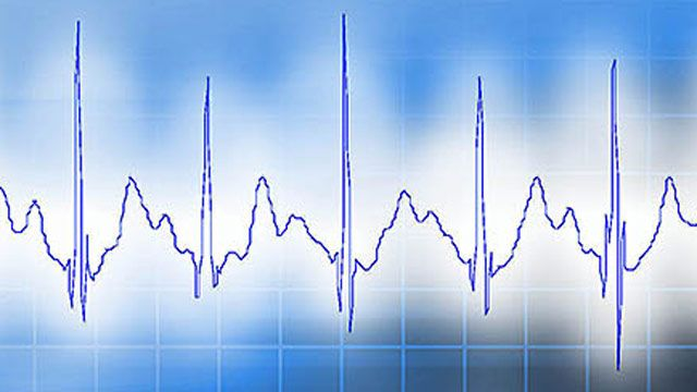 VivaQuant Accelerates Development and Validation of Embedded Device for Ambulatory ECG Sensing