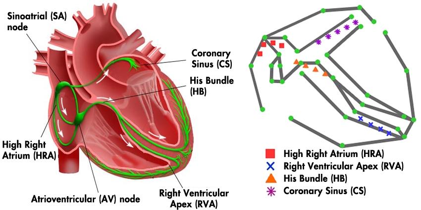 Entwicklung eines elektrophysiologischen Herzmodells für ...