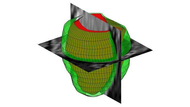 3D Image Processing – MATLAB & Simulink