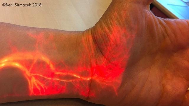 Augmented-Reality-Projektion der Durchblutung in Echtzeit.