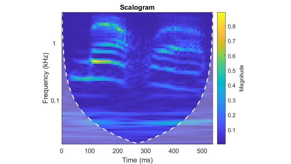Zeit-Frequenz-Analyse