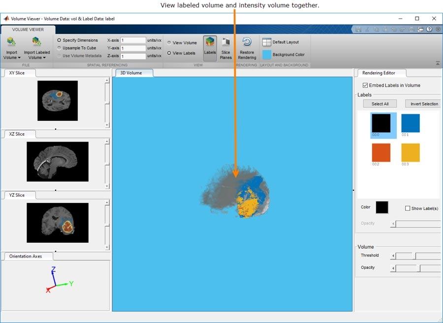 Mit der Volume Viewer-App können Sie mit volumetrischen 3D-Daten oder gekennzeichneten volumetrischen 3D-Daten interagieren und sie anzeigen.