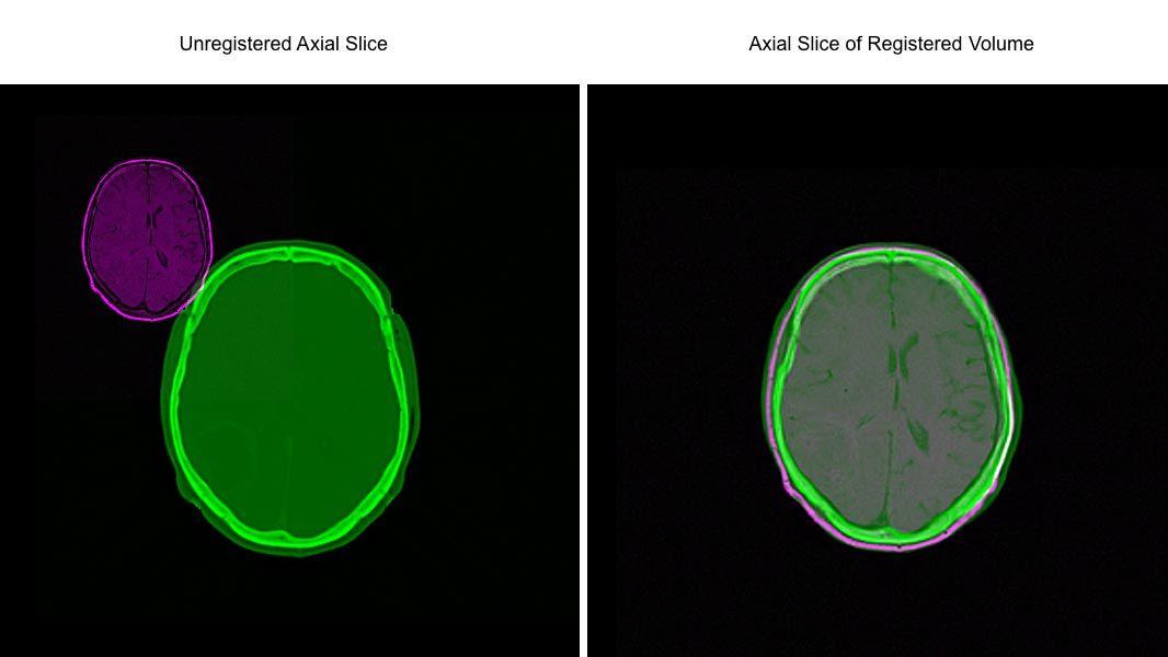 In diesem Beispiel wird gezeigt, wie Sie mit der intensitätsbasierten Bildregistrierung zwei volumetrische Datensätze automatisch aufeinander abstimmen können.
