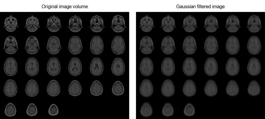 In diesem Beispiel wird gezeigt, wie Sie MRT-Bilder eines menschlichen Gehirns mithilfe einer Gauß'schen 3D-Filterung glätten können.