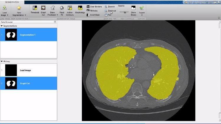 Sehen Sie sich die 3D-Funktionen an, inklusive der Volume Viewer-App der Image Processing Toolbox.