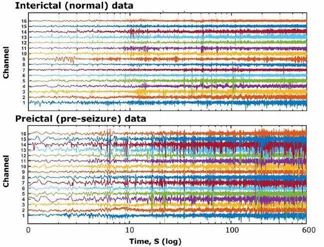 Mehrere Kanäle mit Signaldaten, die den EEG-Aufzeichnungen eines epileptischen Probanden in normalen Perioden und Perioden vor Anfällen entsprechen.