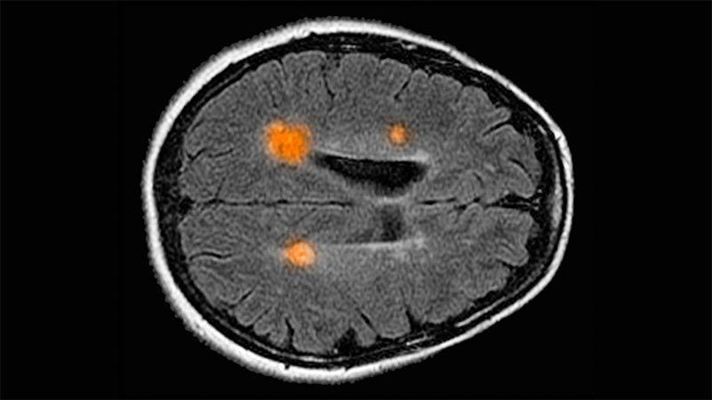 Abbildung des menschlichen Gehirns