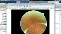 의료 영상 분석은 데이터 추출, 분석 및 처리, 시각화 및 알고리즘 개발과 같은 포괄적인 작업을 필요로 합니다.이번 웨비나를 통해 사용자는 MATLAB과 Image processing toolbox를 이용하여 실제 CT, MRI, 플로오레세인(fluorescein) 혈관 촬영 영상 처리 영상 기법에 대해 소개해 드립니다. webinar에 소개되는 예제를 통해 다음 내용을 알아봅니다.단층 MRI 영상을 이용한 3차원 뇌영상 복원 기법